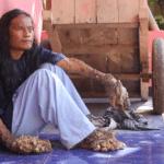Серия 9 Индонезия — Человек-дерево